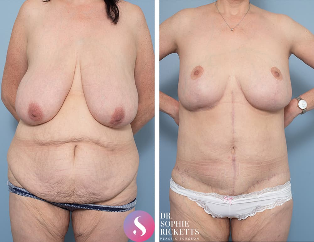 Body Lift & Breast Reduction